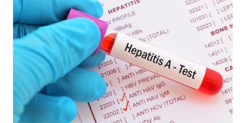 Вспышка гепатита А в Аризоне: власти сообщили о двух смертях