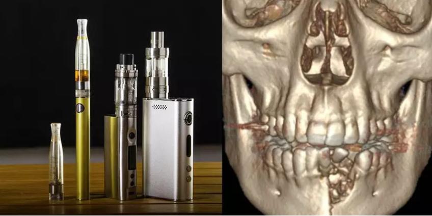 Электронная сигарета выбила подростку из Невады зубы и сломала челюсть