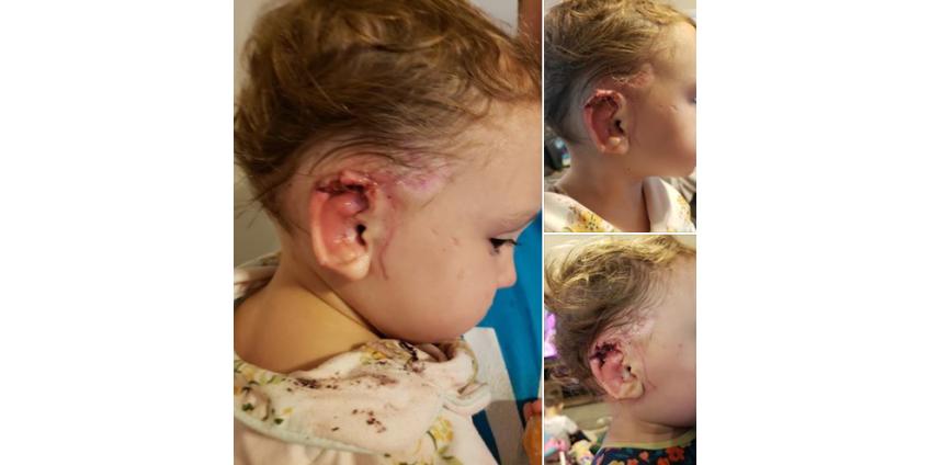Мать в ужасе смотрела, как на 15-месячную малышку набросился огромный немецкий дог и откусил кусочек уха