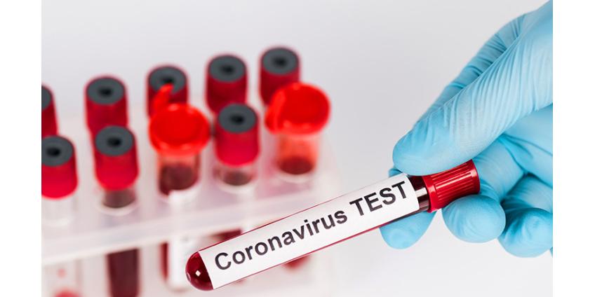 """После первой волны пандемии коронавируса в мире могут ввести """"иммунные паспорта"""" для пересечения границ"""