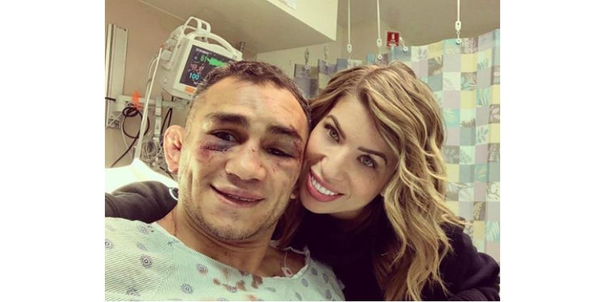 Тони Фергюсон в бою с Джастином Гэтжи получил перелом орбитальной кости лица