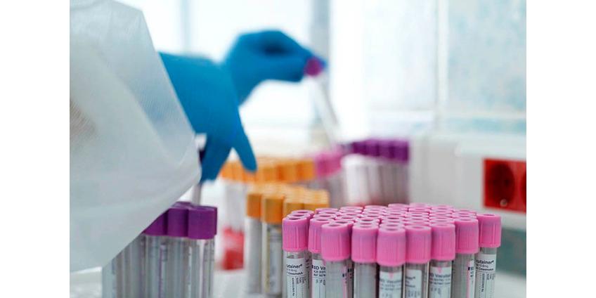 Число выявленных случаев коронавируса в России превысило 900 тысяч