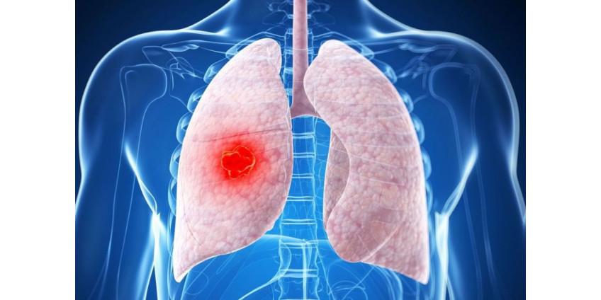 Медики нашли мощное оружие против одного из самых агрессивных типов рака
