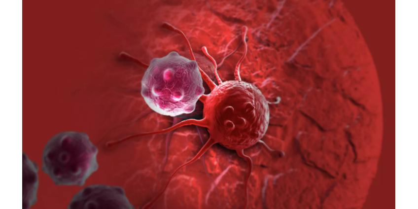 Ученые открыли новый механизм развития рака
