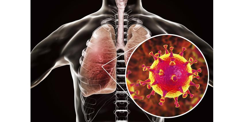 Округ Сан-Диего сообщает о самом высоком ежедневном количестве случаев заболевания COVID-19 с января