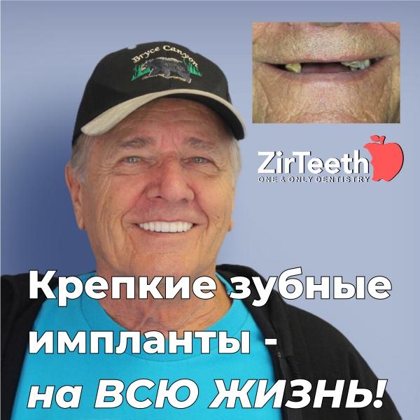 zirteeth